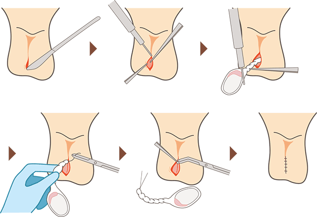 転換 後 性 手術