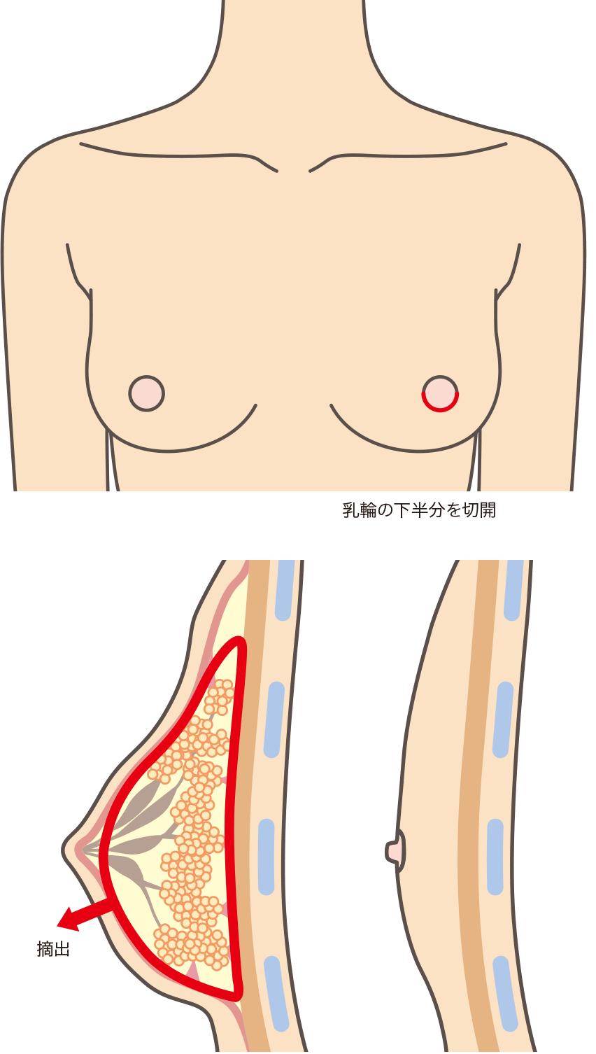 性転換 性器 乳輪下半周に沿って小さく切開し、そこから乳腺と脂肪を取りだします。出血が非常に少なく、傷はほとんどわからなくなります。手術後は胸を圧迫しますが、約1週間後の  ...