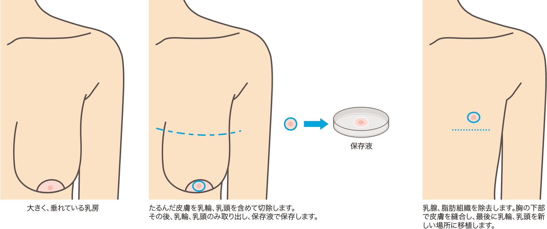 性転換 性器 乳腺切除法と乳房皮膚切除と同時に行う手術で、たるんだ皮を縫合後に乳輪乳頭を適切な位置に移植します。  乳輪乳頭移植は定着率に個人差があるため、適切な手術を行っ ...