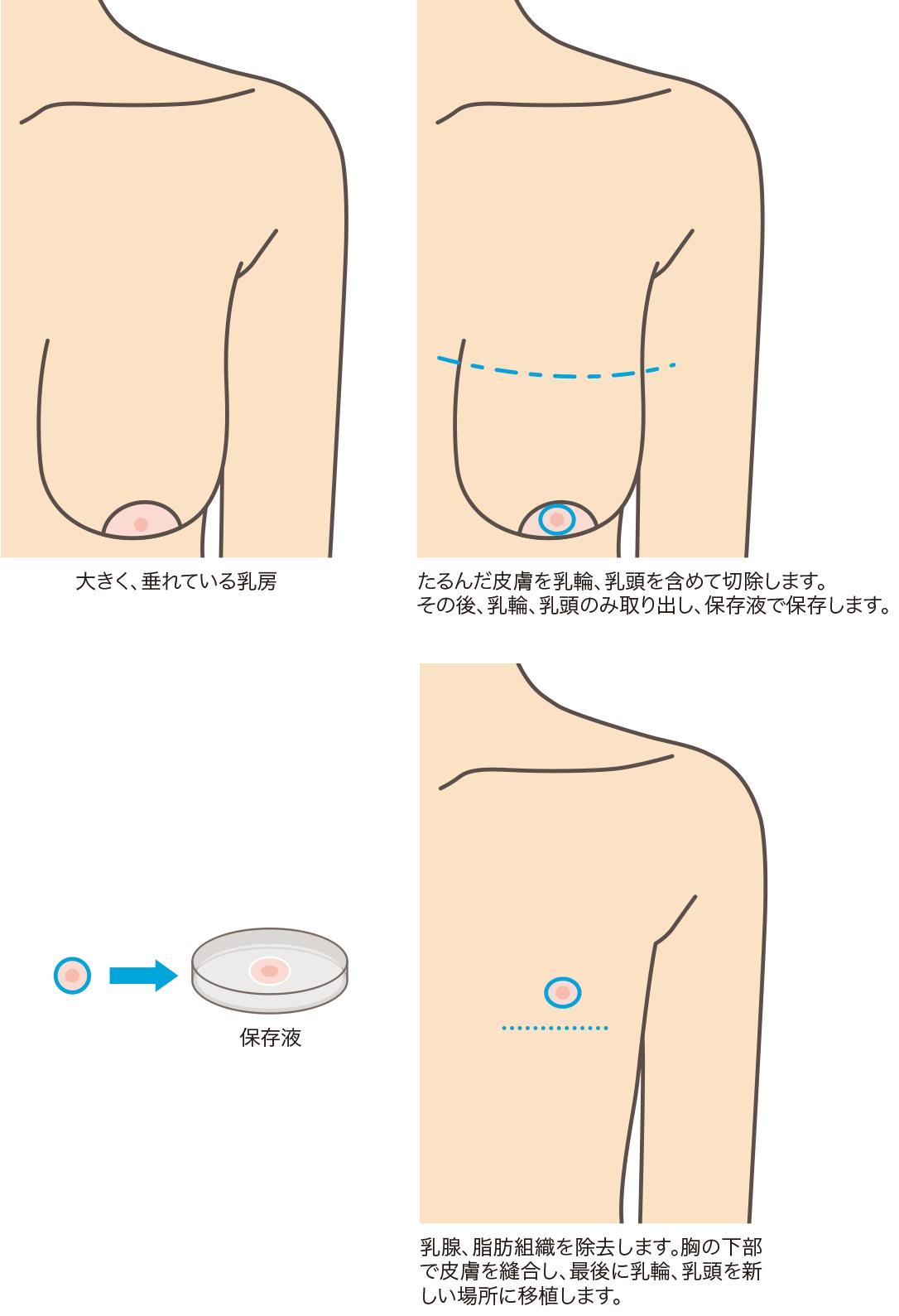 性転換 性器 静岡美容外科 橋本クリニックの乳輪乳頭移植こだわりポイント